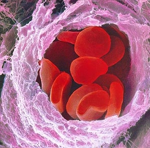 LA COMPOSIZIONE DEL SANGUE - I componenti del sangue, Malattie del sangue, Le Porfirie, Emofilia, Talassemia