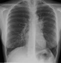 poza despre tubercolosi